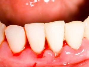 Chảy máu chân răng uống thuốc gì điều trị dứt điểm? 1