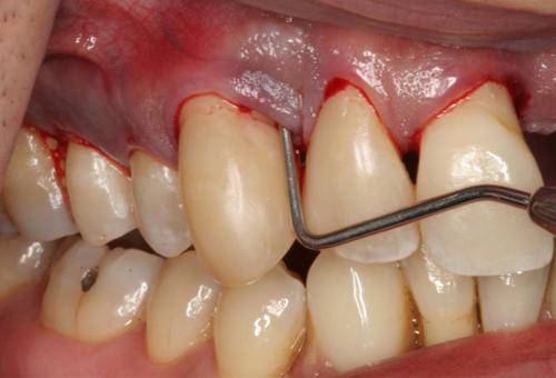 Chảy máu nướu răng cách chữa trị dứt điểm 3