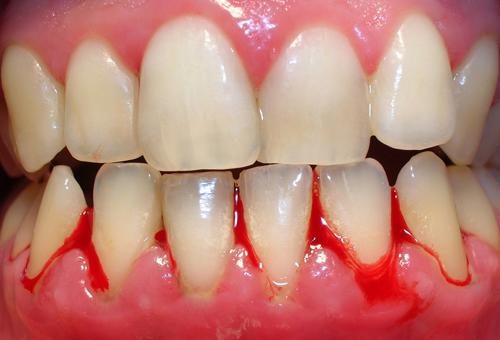 Cảnh báo chảy máu nướu răng đừng xem nhẹ 1