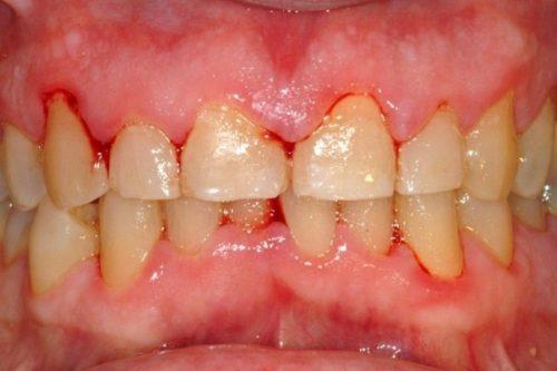 Chảy máu răng khi đánh răng có sao không? 2