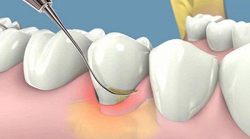 Chảy máu răng khi đánh răng có sao không? 3