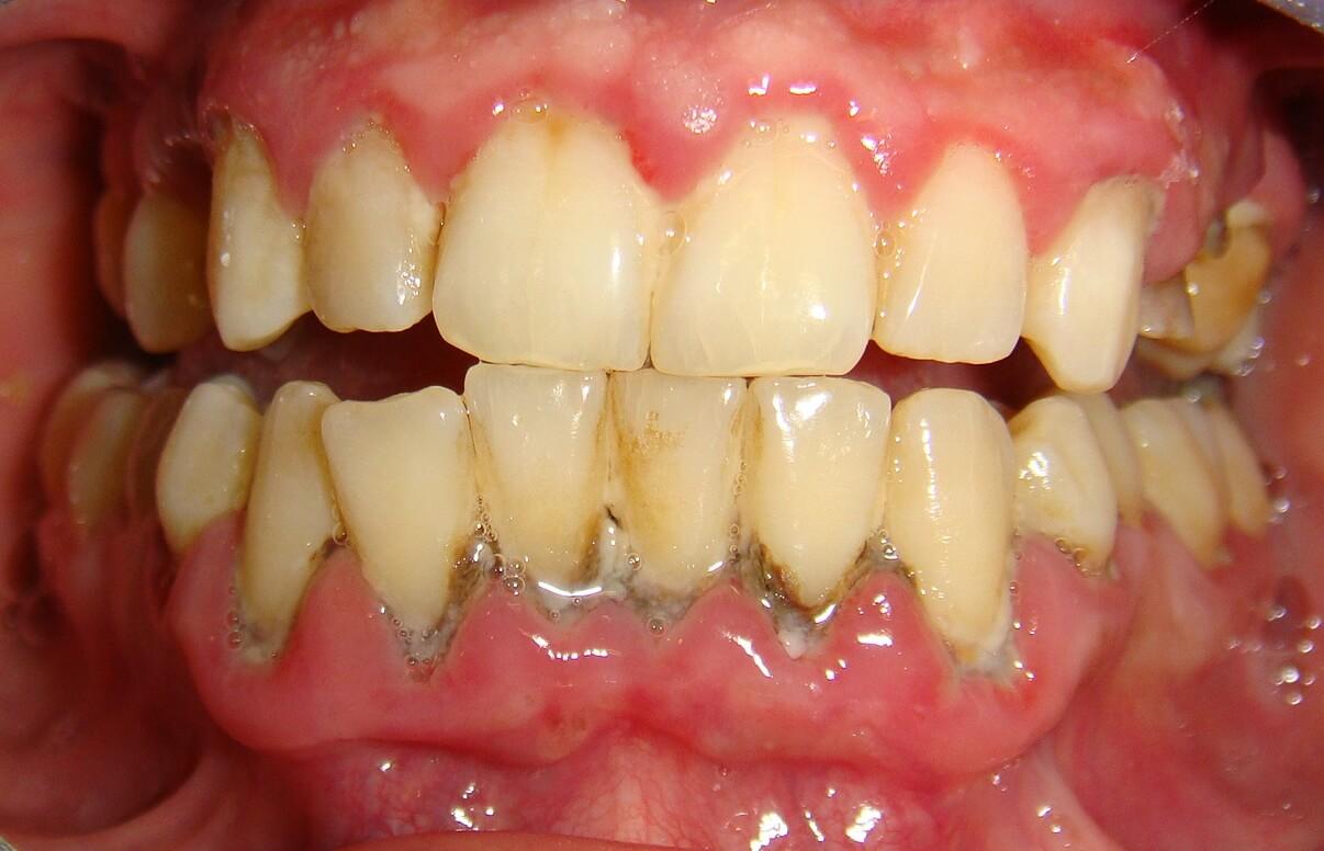 Sưng nướu răng do đâu - Cách trị sưng nướu 1