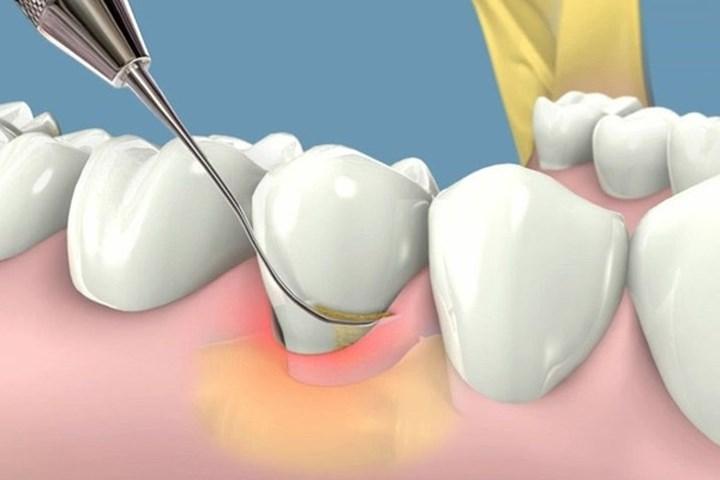 Viêm chân răng có mủ phải điều trị như thế nào? 2
