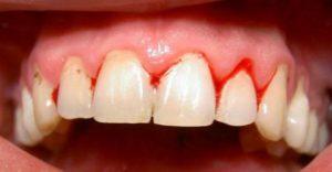Viêm chân răng có nguy hiểm không? 1