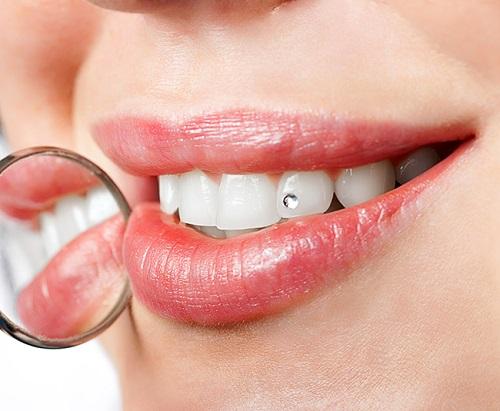 Đính đá vào răng ở đâu thẩm mỹ an toàn?1