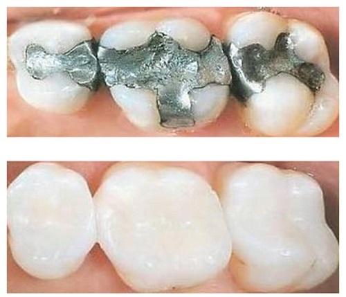 Trám răng sâu bao nhiêu tiền vậy? 3