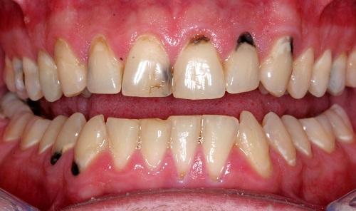 Trám răng sâu bao nhiêu tiền vậy? 1