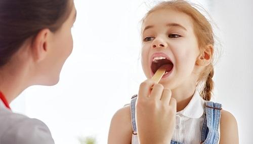 Có nên hàn răng cho bé không? Tìm hiểu ngay3