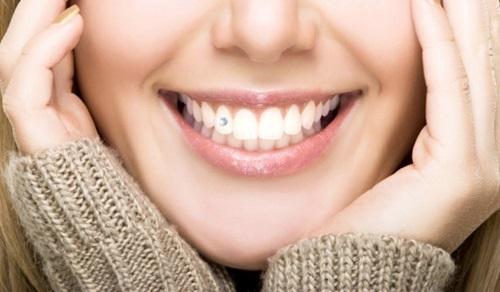 Đính đá vào răng có hại không? Cần tư vấn gấp 2