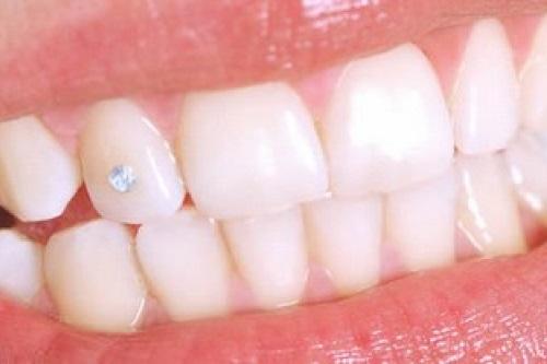 Đính đá vào răng có hại không? Cần tư vấn gấp 3