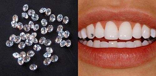Giá đính đá lên răng hiện nay bao nhiêu? 2