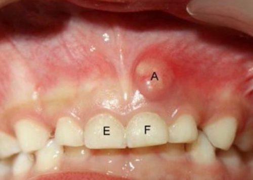 Bị áp xe răng uống thuốc gì là hết? 1