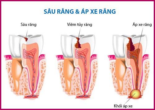 Áp xe răng khôn là gì? Tại sao cần điều trị áp xe răng khôn? 2