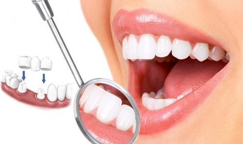 Độ bền của răng sứ thẩm mỹ bao lâu? 1