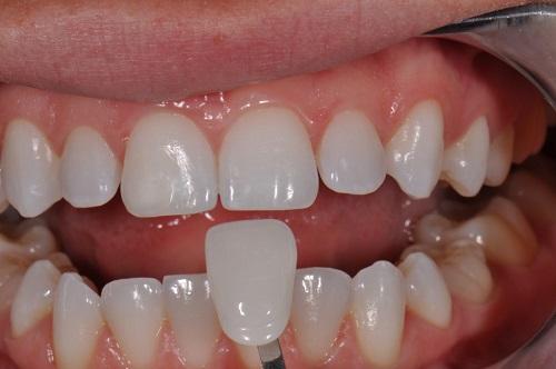 Độ bền của răng sứ thẩm mỹ bao lâu? 2