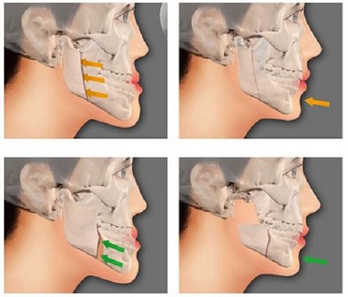 Phẫu thuật hàm hô bao lâu mới hồi phục? Cần thông tin1
