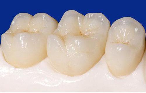 Răng sứ bị mẻ vỡ phải làm sao? Giải pháp khắc phục 1