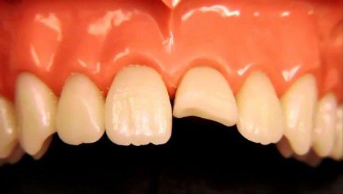 Răng sứ bị mẻ vỡ phải làm sao? Giải pháp khắc phục 2
