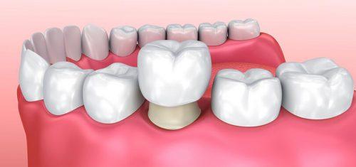 Răng sứ có tẩy trắng được không? 3
