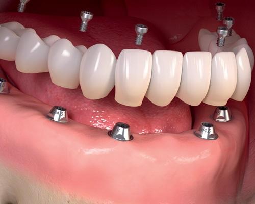 Trồng răng hàm có đau không? 2