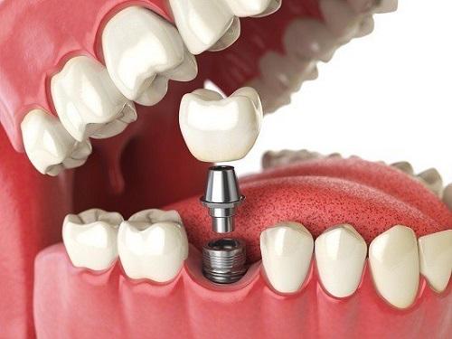 Trồng răng hàm có đau không? 3