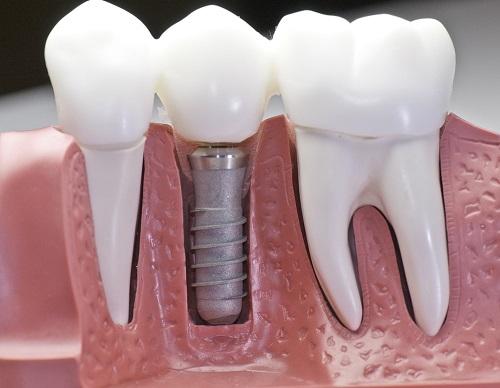 Trồng răng sứ có đau không? Khi trồng răng sứ phải lưu ý gì1