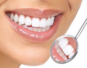 Nguyên nhân bọc răng sứ bị cộm và giải pháp xử lý-1
