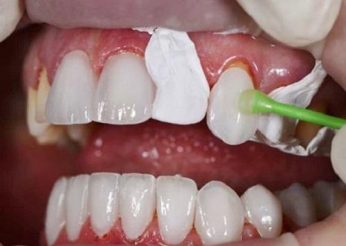 Nguyên nhân bọc răng sứ bị cộm và giải pháp xử lý-2
