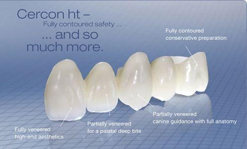 Bọc răng sứ có ảnh hưởng gì không?-1