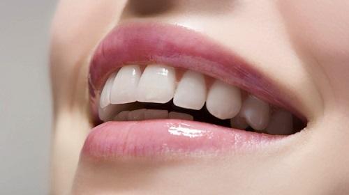 Bọc răng sứ không cần mài răng có đẹp và đều không-1