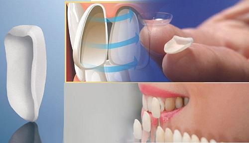 Bọc răng sứ không cần mài răng có đẹp và đều không-3