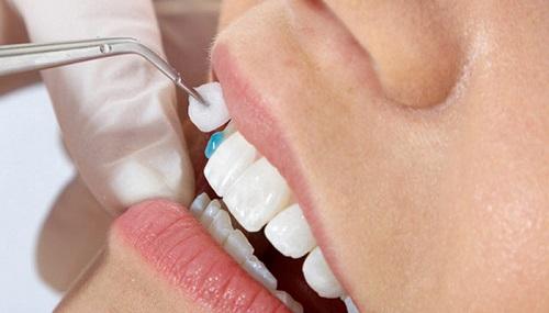 Bọc răng sứ không cần mài răng có đẹp và đều không-4