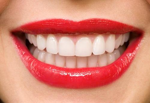 Bọc răng sứ ở đâu đẹp và đảm bảo độ an toàn cao-1