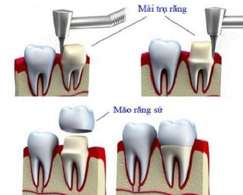 Bọc răng sứ ở đâu đẹp và đảm bảo độ an toàn cao-3