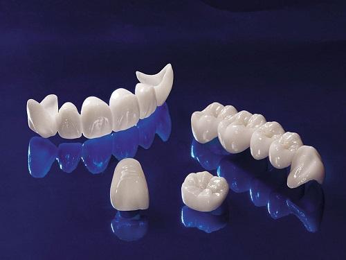 Bọc răng sứ ở đâu đẹp và đảm bảo độ an toàn cao-4