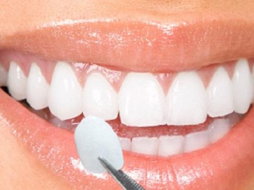 Bọc răng sứ veneer ở đâu tốt tại tphcm hiện nay?-1