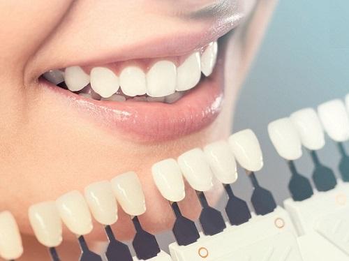 Bọc răng sứ veneer ở đâu tốt tại tphcm hiện nay?-3