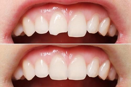 Bọc răng sứ veneer ở đâu tốt tại tphcm hiện nay?-4