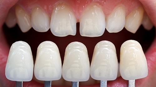 Bọc sứ răng cửa giá bao nhiêu tiền là bọc được?-1