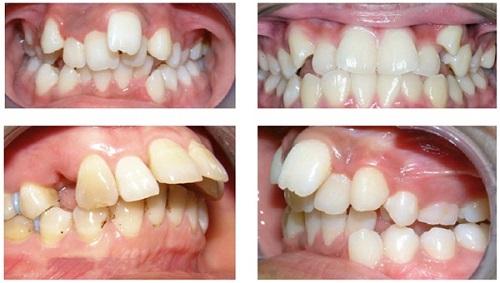 Răng bị hô có nên đi niềng răng không?-1