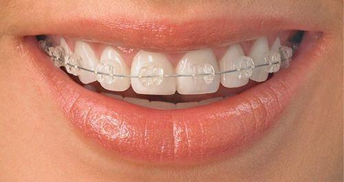 Răng bị hô có nên đi niềng răng không?-3