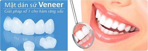 Tìm hiểu về dịch vụ làm răng sứ veneer thẩm mỹ-1