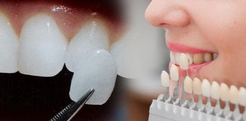 Tìm hiểu về dịch vụ làm răng sứ veneer thẩm mỹ-2