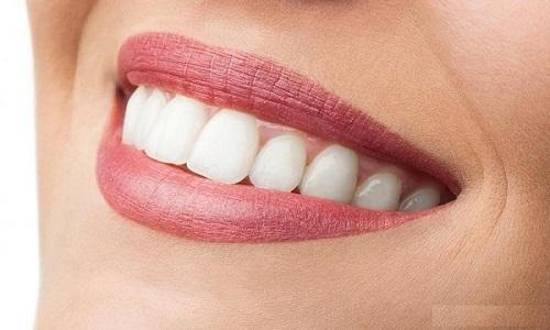 Tìm hiểu về dịch vụ làm răng sứ veneer thẩm mỹ-4