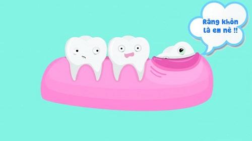 Nhổ răng khôn có nguy hiểm không? Biến chứng có thể gặp phải 1