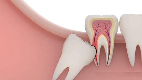 Nhổ răng khôn ở đâu tốt và uy tín nhất tại tphcm? 1