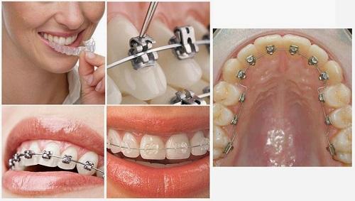 Niềng răng có làm răng yếu đi không? Vì sao?-1
