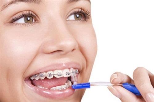 Niềng răng có làm răng yếu đi không? Vì sao?-3