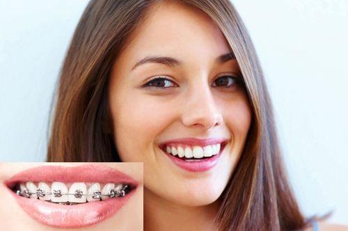 Niềng răng có làm răng yếu đi không? Vì sao?-4