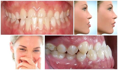Niềng răng hàm dưới bao nhiêu tiền là hiệu quả thẩm mỹ cao?-1